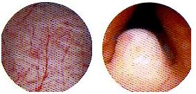 방광염원인
